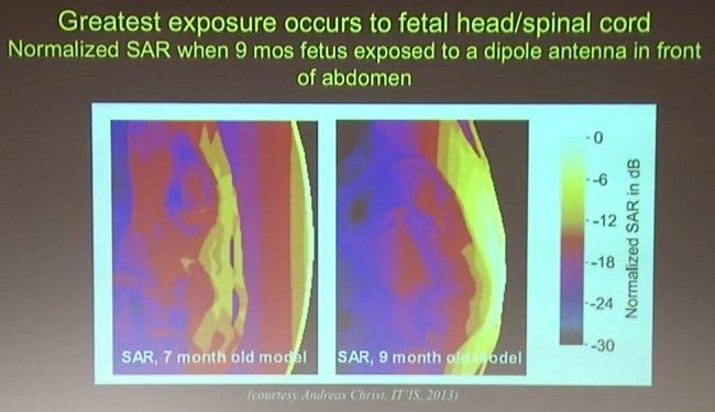 RF-Exposure-Fetus